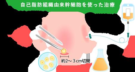 自己脂肪由来幹細胞を使った治療の説明